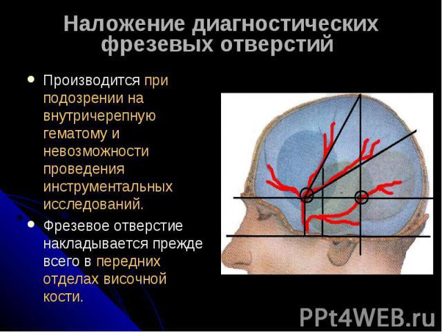 Наложение диагностических фрезевых отверстий Производится при подозрении на внутричерепную гематому и невозможности проведения инструментальных исследований.Фрезевое отверстие накладывается прежде всего в передних отделах височной кости.