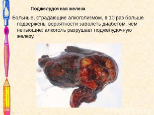 Поджелудочная железа Поджелудочная железа Больные, страдающие алкоголизмом, в 10