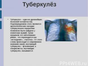 Туберкулёз Туберкулез – одна из древнейших болезней человечества. Подтверждением