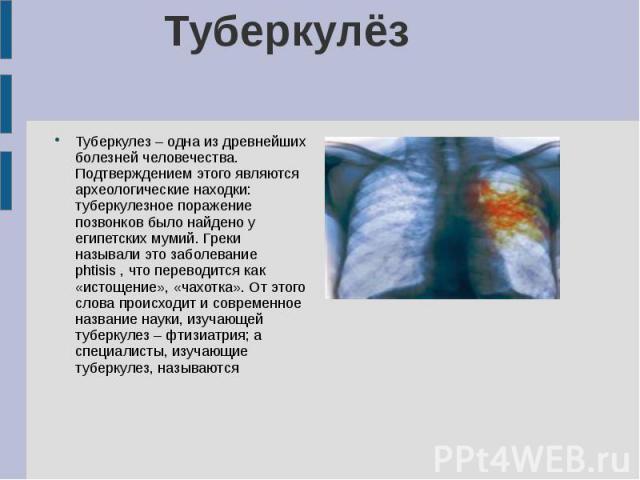 Туберкулёз Туберкулез – одна из древнейших болезней человечества. Подтверждением этого являются археологические находки: туберкулезное поражение позвонков было найдено у египетских мумий. Греки называли это заболевание phtisis , что переводится как …