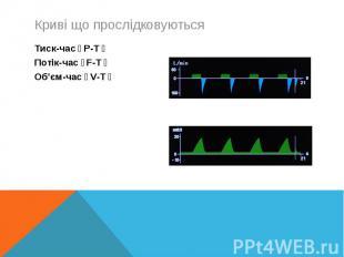 Тиск-час(P-T)Тиск-час(P-T)Потік-час(F-T)Об'єм-час(V-T)