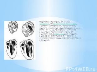 Недостаточность митрального клапана –врожденный илиприобретенный пор