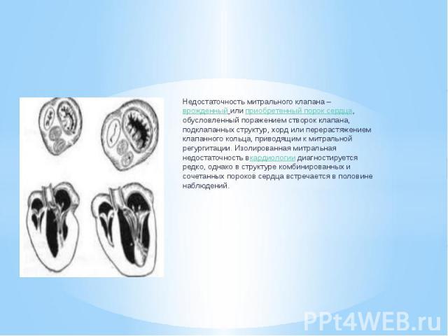 Недостаточность митрального клапана –врожденный илиприобретенный порок сердца, обусловленный поражением створок клапана, подклапанных структур, хорд или перерастяжением клапанного кольца, приводящим к митральной регургитации. Изолированн…