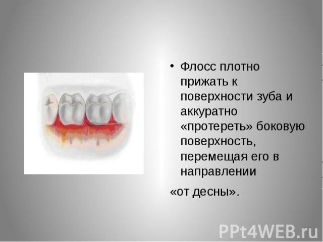 Флосс плотно прижать к поверхности зуба и аккуратно «протереть» боковую поверхность, перемещая его в направлении Флосс плотно прижать к поверхности зуба и аккуратно «протереть» боковую поверхность, перемещая его в направлении «от десны».