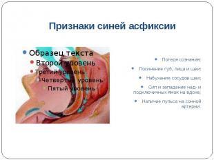 Признаки синей асфиксии Потеря сознания; Посинение губ, лица и шеи; Набухание со
