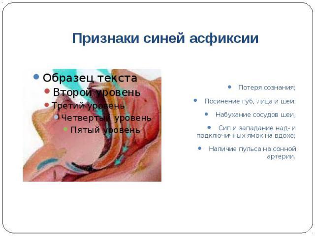 Признаки синей асфиксии Потеря сознания; Посинение губ, лица и шеи; Набухание сосудов шеи; Сип и западание над- и подключичных ямок на вдохе; Наличие пульса на сонной артерии.