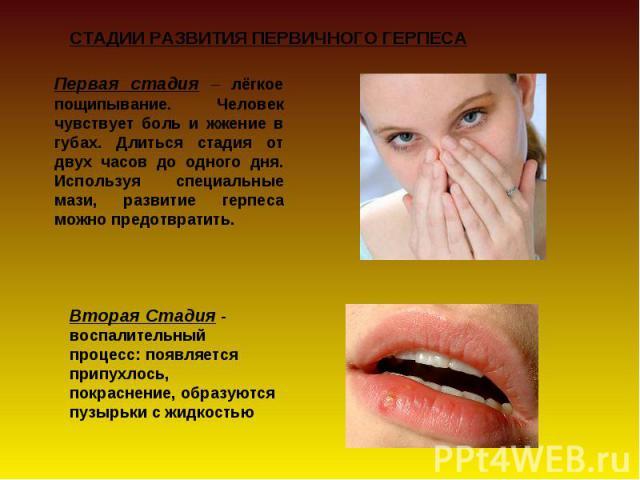 Первая стадия – лёгкое пощипывание. Человек чувствует боль и жжение в губах. Длиться стадия от двух часов до одного дня. Используя специальные мази, развитие герпеса можно предотвратить. Вторая Стадия - воспалительный процесс: появляется припухлось,…