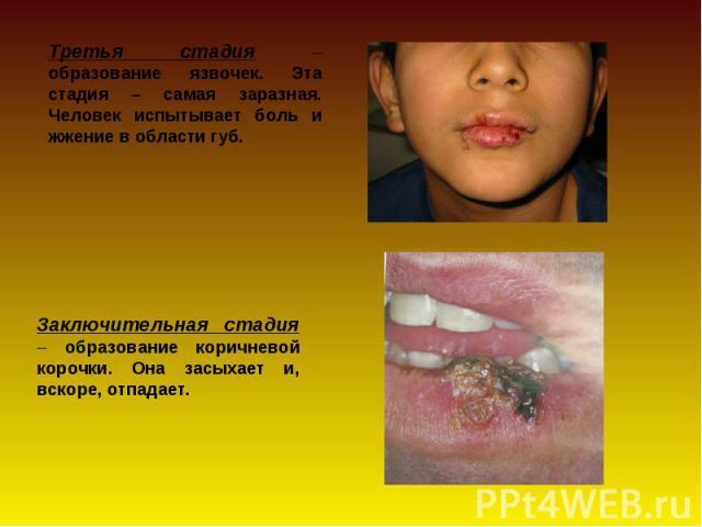 Третья стадия – образование язвочек. Эта стадия – самая заразная. Человек испытывает боль и жжение в области губ. Заключительная стадия – образование коричневой корочки. Она засыхает и, вскоре, отпадает.