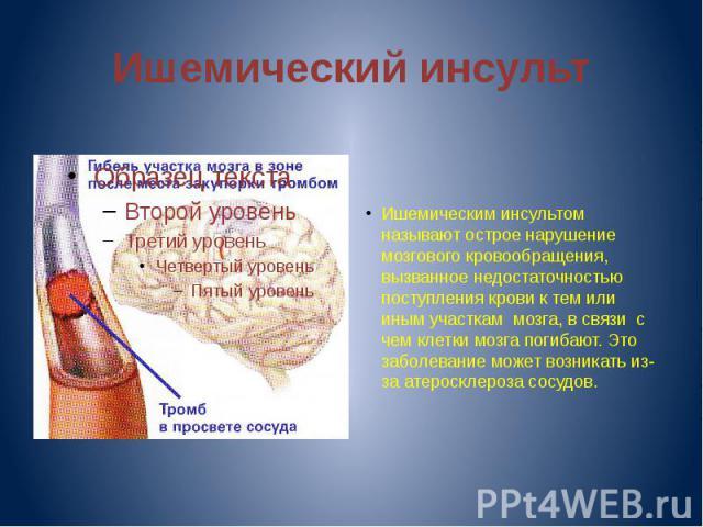 Ишемический инсульт Ишемическим инсультом называют острое нарушение мозгового кровообращения, вызванное недостаточностью поступления крови к тем или иным участкам мозга, в связи с чем клетки мозга погибают. Это заболевание может возникать из-за атер…