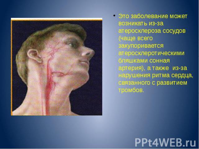 Это заболевание может возникать из-за атеросклероза сосудов (чаще всего закупоривается атеросклеротическими бляшками сонная артерия), а также из-за нарушения ритма сердца, связанного с развитием тромбов.