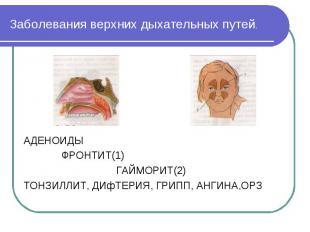 Заболевания верхних дыхательных путей. АДЕНОИДЫ ФРОНТИТ(1) ГАЙМОРИТ(2) ТОНЗИЛЛИТ