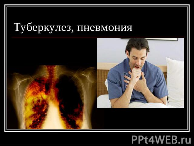 Туберкулез, пневмония