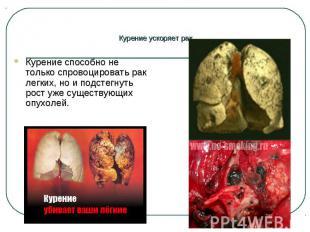 Курение способно не только спровоцировать рак легких, но и подстегнуть рост уже