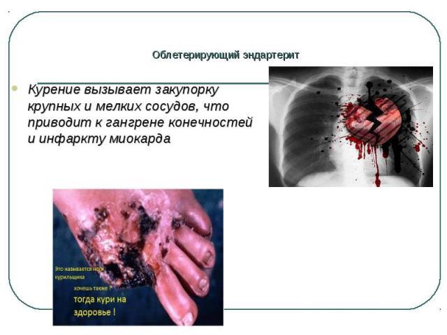 Курение вызывает закупорку крупных и мелких сосудов, что приводит к гангрене конечностей и инфаркту миокарда Курение вызывает закупорку крупных и мелких сосудов, что приводит к гангрене конечностей и инфаркту миокарда
