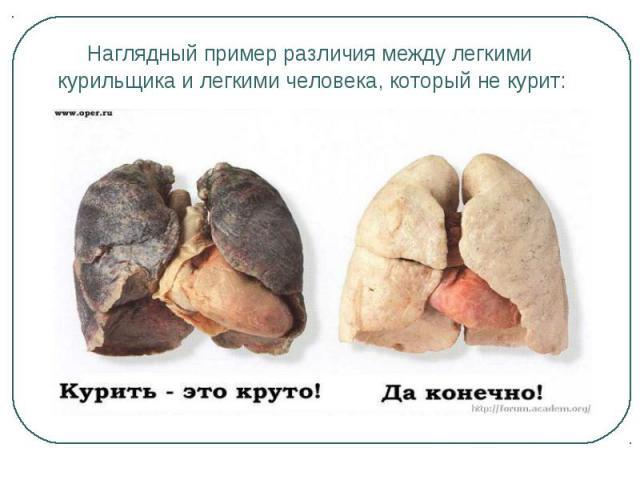 Наглядный пример различия между легкими Наглядный пример различия между легкими курильщика и легкими человека, который не курит: