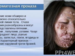 Поражение кожи обширно и симметрично относительно срединной линии тела . Очаги п