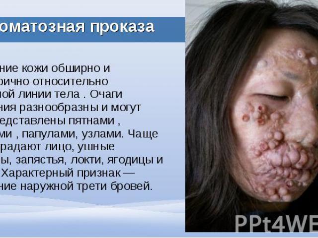 Поражение кожи обширно и симметрично относительно срединной линии тела . Очаги поражения разнообразны и могут быть представлены пятнами , бляшками , папулами, узлами. Чаще всего страдают лицо, ушные раковины, запястья, локти, ягодицы и колени. Харак…