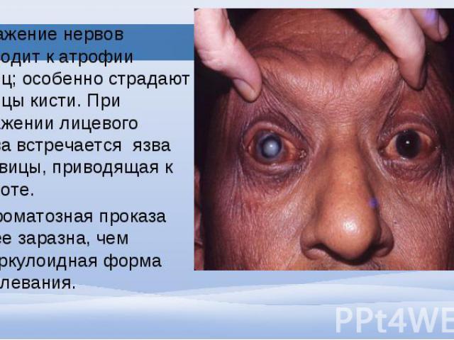Поражение нервов приводит к атрофии мышц; особенно страдают мышцы кисти. При поражении лицевого нерва встречается язва роговицы, приводящая к слепоте. Поражение нервов приводит к атрофии мышц; особенно страдают мышцы кисти. При поражении лицевого не…