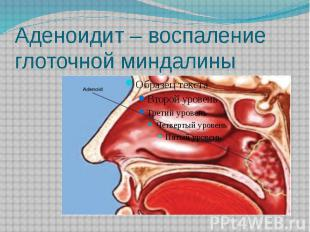 Аденоидит – воспаление глоточной миндалины