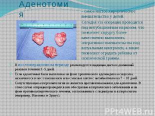 Аденотомия - самое частое хирургическое вмешательство у детей. Сегодня эта опера