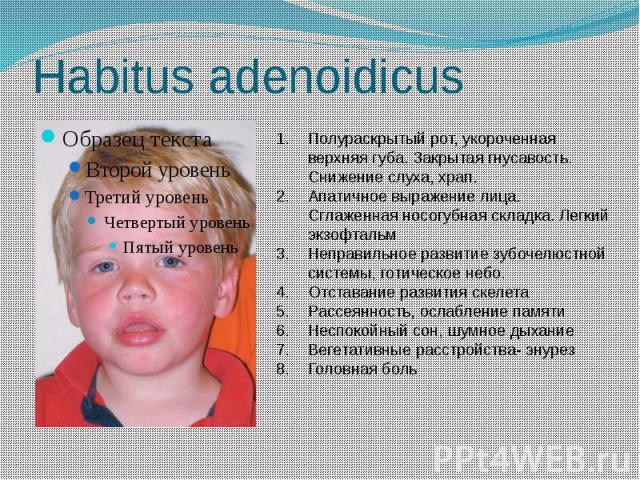 Habitus adenoidicus