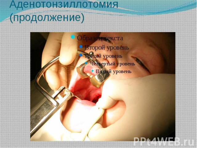 Аденотонзиллотомия (продолжение)