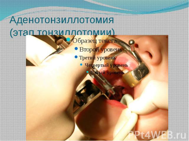 Аденотонзиллотомия (этап тонзиллотомии)