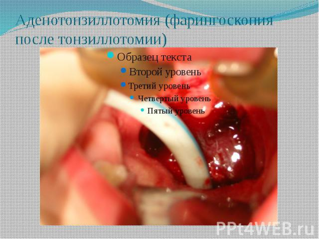 Аденотонзиллотомия (фарингоскопия после тонзиллотомии)
