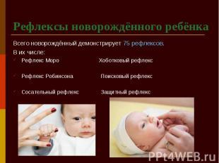 Рефлексы новорождённого ребёнка Всего новорождённый демонстрирует 75 рефлексов.