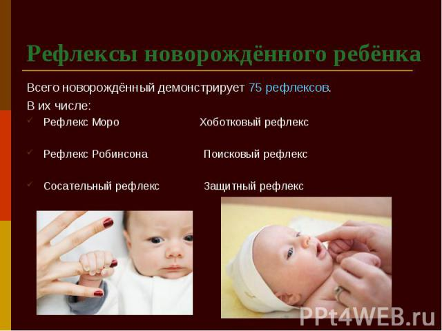 Рефлексы новорождённого ребёнка Всего новорождённый демонстрирует 75 рефлексов. В их числе: Рефлекс Моро Хоботковый рефлекс Рефлекс Робинсона Поисковый рефлекс Сосательный рефлекс Защитный рефлекс