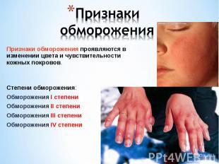 Признаки обморожения проявляются в изменении цвета и чувствительности кожных пок