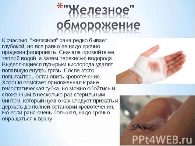 """К счастью, """"железная"""" рана редко бывает глубокой, но все равно ее надо срочно продезинфицировать. Сначала промойте ее теплой водой, а затем перекисью водорода. Выделяющиеся пузырьки кислорода удалят попавшую внутрь грязь. После этого попыт…"""
