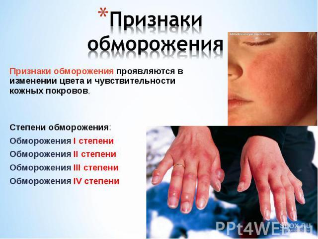 Признаки обморожения проявляются в изменении цвета и чувствительности кожных покровов. Признаки обморожения проявляются в изменении цвета и чувствительности кожных покровов. Степени обморожения: Обморожения I степени Обморожения II степени Обморожен…