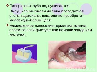 Поверхность зуба подсушивается. Поверхность зуба подсушивается. Высушивание эмал