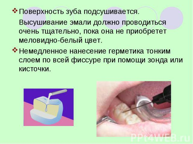 Поверхность зуба подсушивается. Поверхность зуба подсушивается. Высушивание эмали должно проводиться очень тщательно, пока она не приобретет меловидно-белый цвет. Немедленное нанесение герметика тонким слоем по всей фиссуре при помощи зонда или кисточки.
