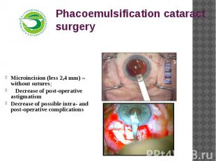 Phacoemulsification cataract surgery Microincision (less 2,4 mm) – without