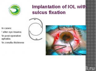 Implantation of IOL with sulcus fixationIn cases: after eye traumain post-operat