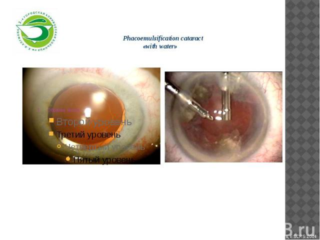 Phacoemulsification cataract «with water»