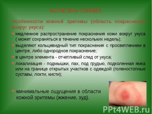 БОЛЕЗНЬ ЛАЙМА Особенности кожной эритемы (область покраснения вокруг укуса): мед