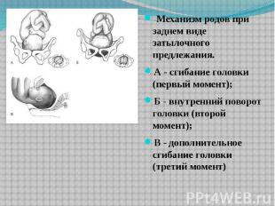 Механизм родов при заднем виде затылочного предлежания. А - сгибание голов