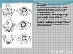 Механизм родов при переднем виде затылочного предлежания. Механизм р