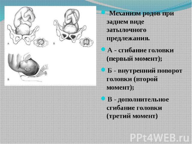 Механизм родов при заднем виде затылочного предлежания. А - сгибание головки (первый момент); Б - внутренний поворот головки (второй момент); В - дополнительное сгибание головки (третий момент)