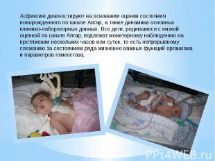 Асфиксию диагностируют на основании оценки состояния новорожденного по шкале Апг