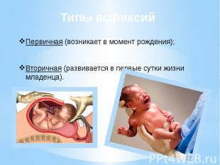 Типы асфиксий Первичная (возникает в момент рождения); Вторичная (развивается в