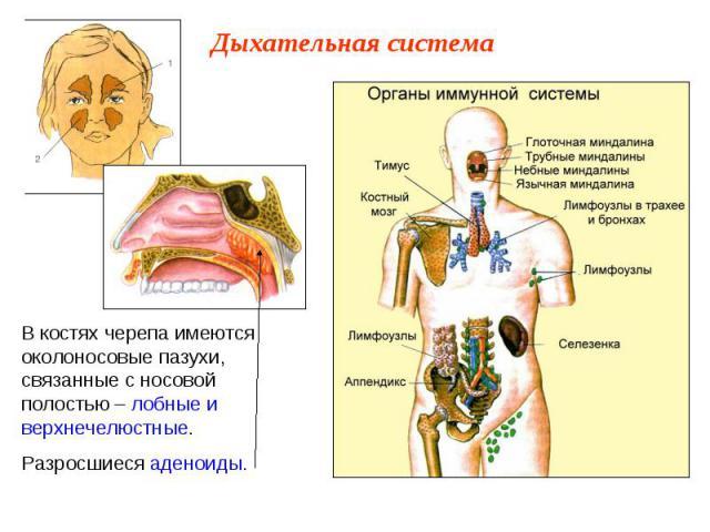 В костях черепа имеются околоносовые пазухи, связанные с носовой полостью – лобные и верхнечелюстные.Разросшиеся аденоиды.