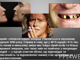 Термін «обличчя курця» вперше з'являється в науковому журналі 1985 року. Справа