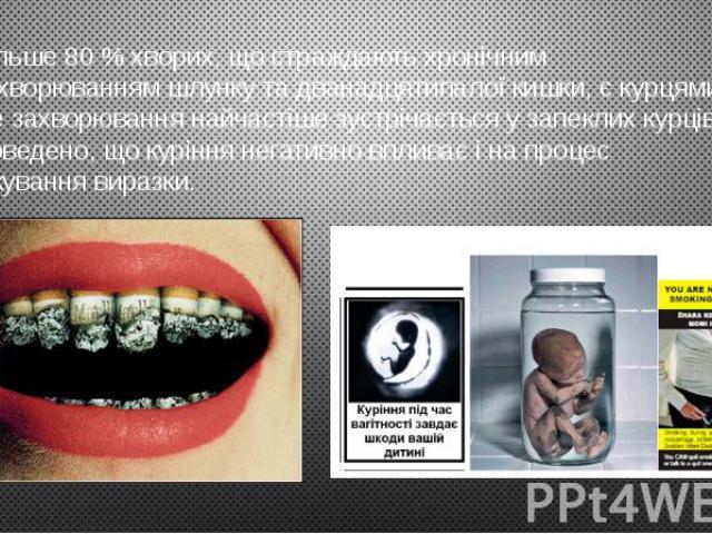Більше 80 % хворих, що страждають хронічним захворюванням шлунку та дванадцятипалої кишки, є курцями. Це захворювання найчастіше зустрічається у запеклих курців. Доведено, що куріння негативно впливає і на процес лікування виразки.