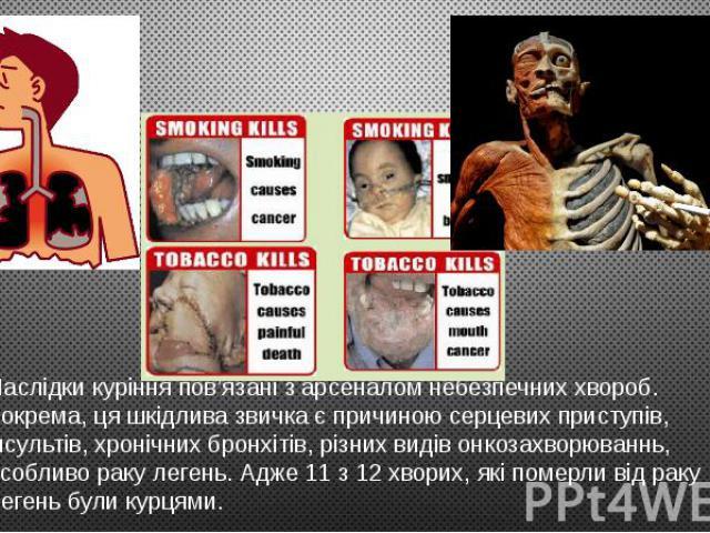 Наслідки куріння пов'язані з арсеналом небезпечних хвороб. Зокрема, ця шкідлива звичка є причиною серцевих приступів, інсультів, хронічних бронхітів, різних видів онкозахворюваннь, особливо раку легень. Адже 11 з 12 хворих, які померли від раку леге…