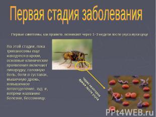 Первые симптомы, как правило, возникают через 1–3 недели после укуса мухи цеце П