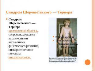 Синдром Шереше вского— Тернера Синдром Шереше вского— Тернера—